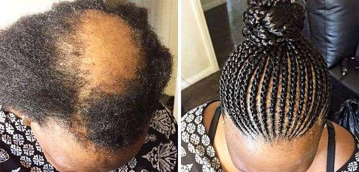Довге волосся дозволяють приховати проблему випадіння волосся (5 фото)