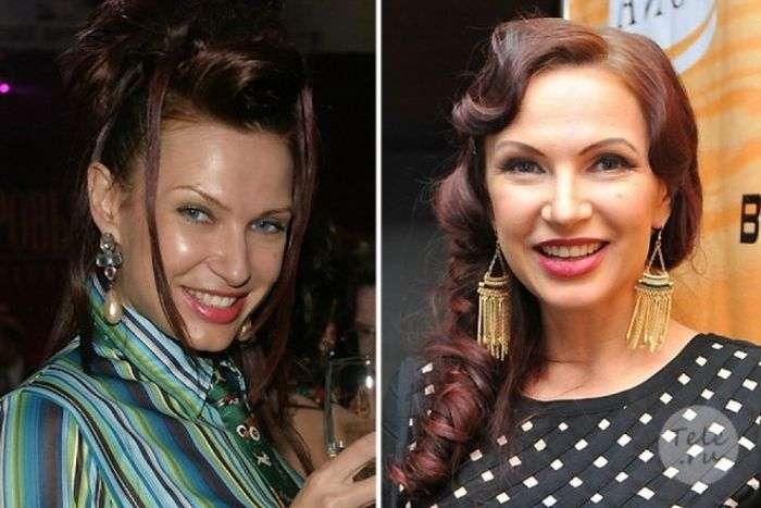 Зірки російського шоу-бізнесу до пластичних операцій і після них (45 фото)