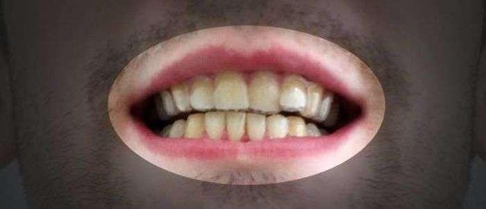 Хлопець вирівняв зуби за допомогою саморобних брекетів, надруковані на 3D-принтері (11 фото)