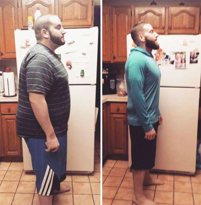 Люди, що подолали зайву вагу (35 фото)
